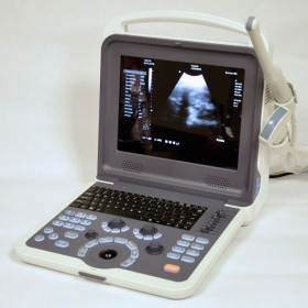 ULTRASONOGRAPH COLOR DOPPLER DIGITAL PORTABLE CAMSONIC 500 WITH 2 PROBES