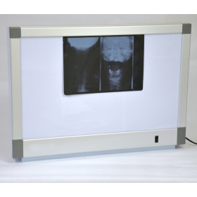 X-RAY VIEWER 2-SECTION STEEL ENAMEL WITH ALUMINIUM