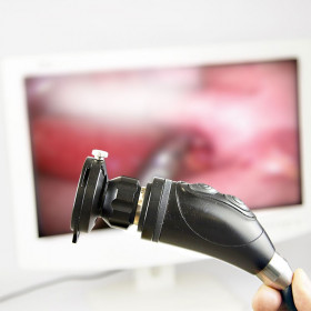 HD ULTRA COMPACT CAMERA OF CELIOSCOPY