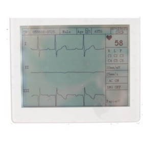 ELECTROCARDIOGRAMME PORTABLE 3 PISTES AV INTERPRETATION